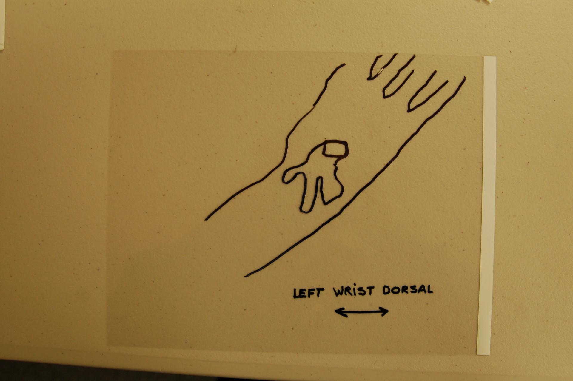 Drawing nail wound