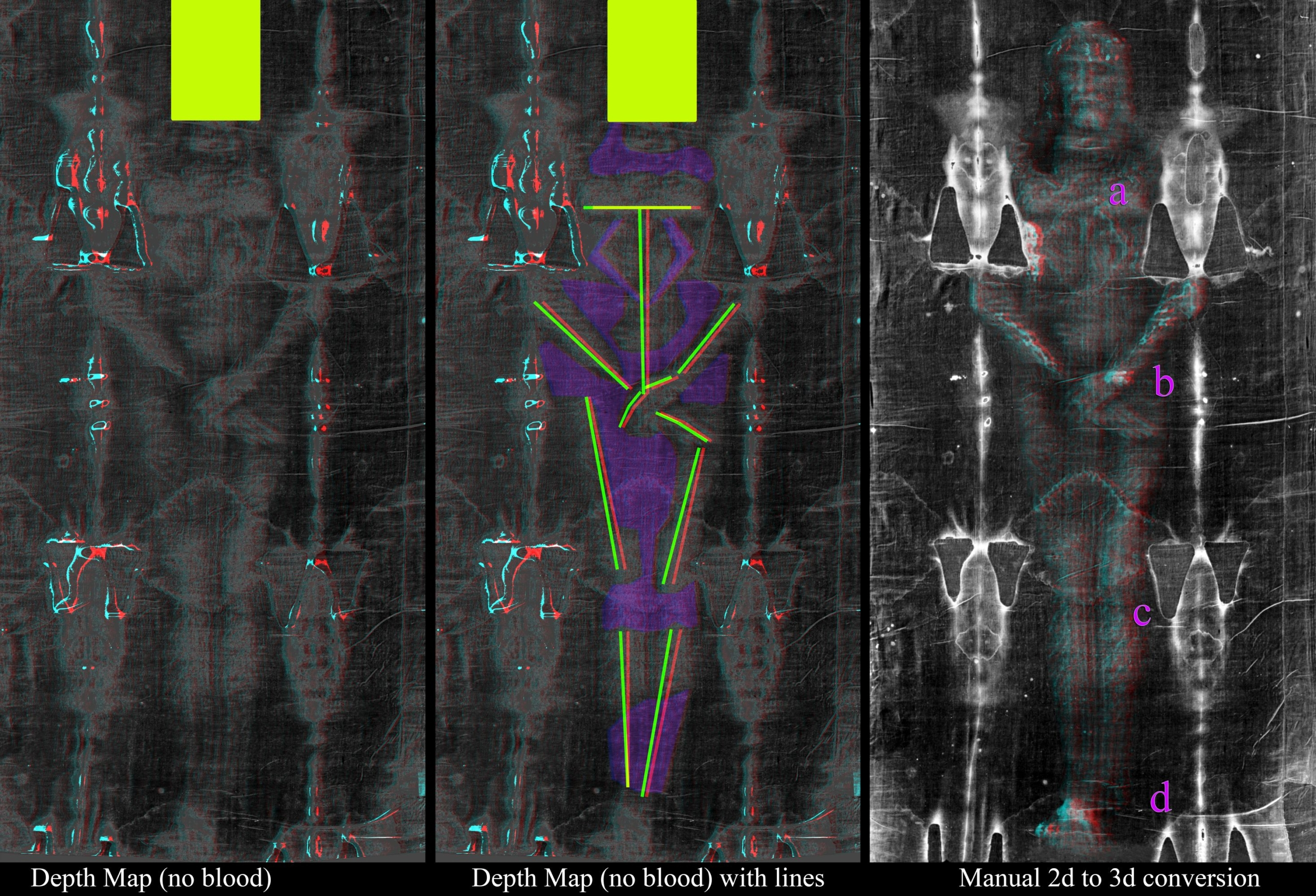 Photo A. Body front in 3D ANAGLYPH (use 3D glasses)